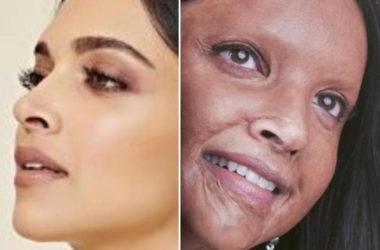 Deepika'S Chhapaak Lends Voice To Acid Attack Survivors